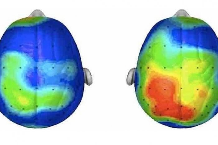 Hersenen - wandelen